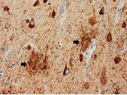 Amyloid plaques and neurofibrillary tangles from an Alzheimer's disease patient - MedHelp
