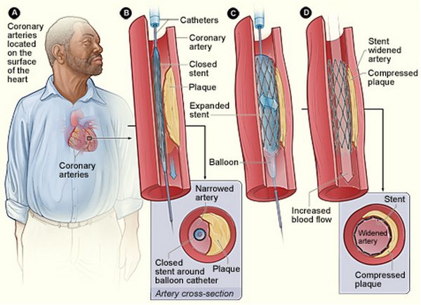 Coronary Angioplasty Stent Placement