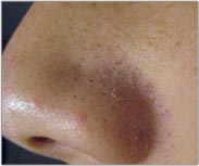 Acne Picture - Products for Sensitive Skin - Dermatology Information - MedHelp