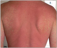 Burning Stining Skin Picture - Products for Sensitive Skin - Dermatology Information - MedHelp