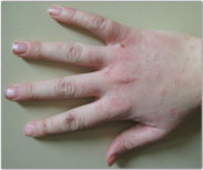 Contact Dermatitis Picture - Products for Sensitive Skin - Dermatology Information - MedHelp