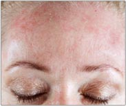 Rosacea Picture - Products for Sensitive Skin - Dermatology Information - MedHelp
